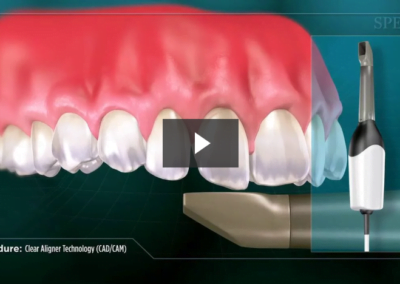 Clear Aligner Technology (CAD/CAM)