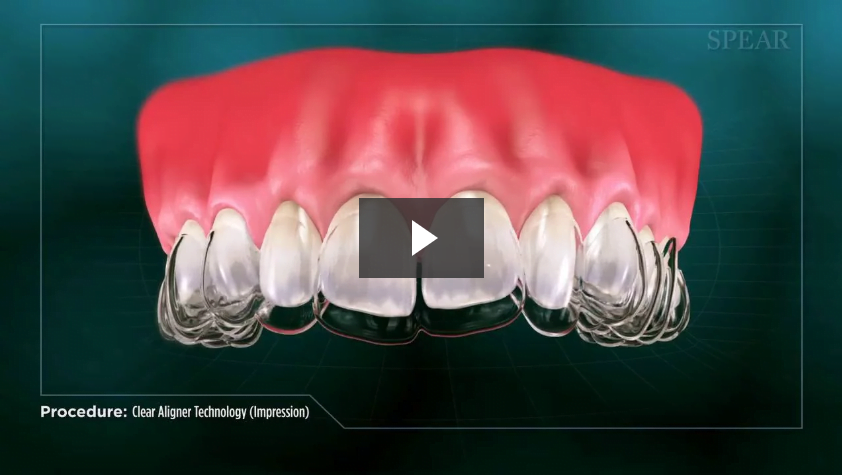 Clear Aligner Technology (Impression)