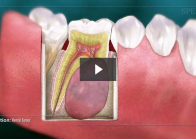 Dental Tumor