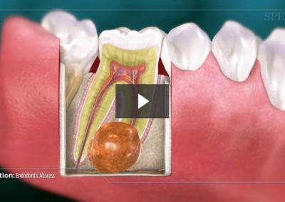 Endodontic Abscess