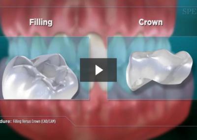 Filling Versus Crown (CAD/CAM)