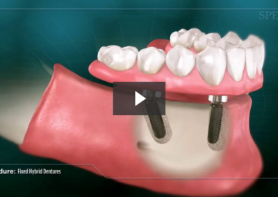 Fixed Hybrid Dentures