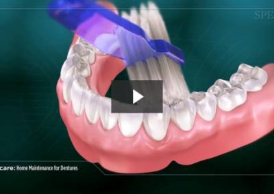 Home Maintenance for Dentures
