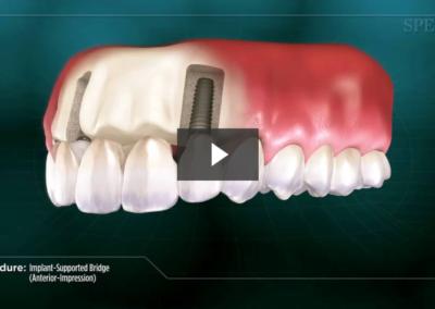 Implant-Supported Bridge (Anterior- Impression)