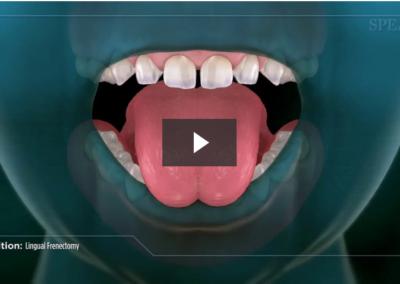 Lingual Frenectomy