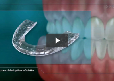 Occlusal Appliance for Tooth Wear