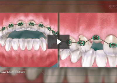 Orthodontic Extrusion