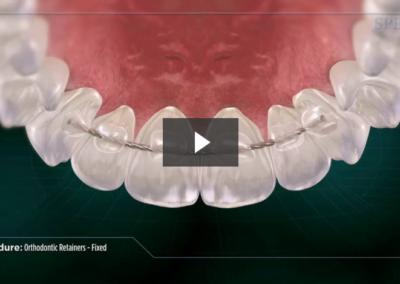 Orthodontic Retainers- Fixed