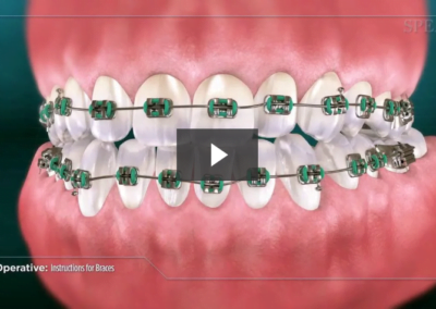Post-Operative Instructions for Braces