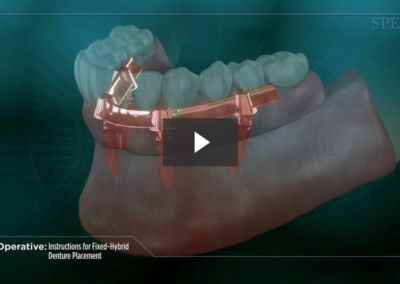 Post-Operative Instructions for Fixed-Hybrid Denture Placement