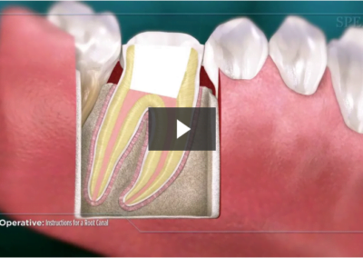 Post-Operative Instructions for a Root Canal