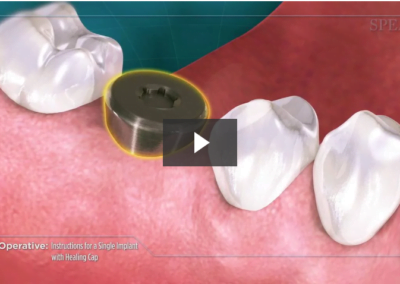 Post-Operative Instructions for a Single Implant with Healing Cap
