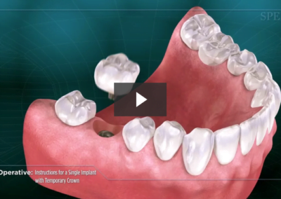 Post-Operative Instructions for a Single Implant with Temporary Crown