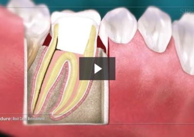 Root Canal Retreatment (No File)