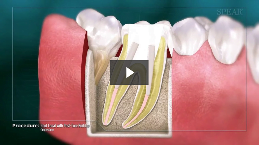 Root Canal with Post-Core Buildup (Impression)