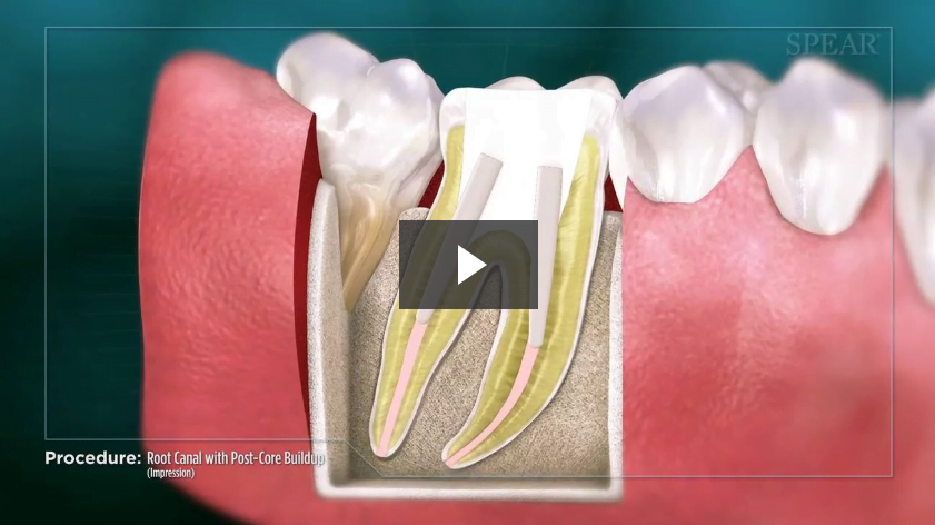 Root Canal with Post-Core Buildup No File (Impression)