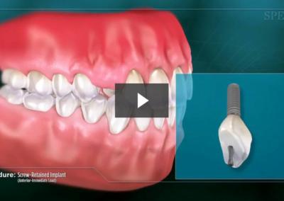 Screw-Retained Implant (Anterior- Immediate Load)
