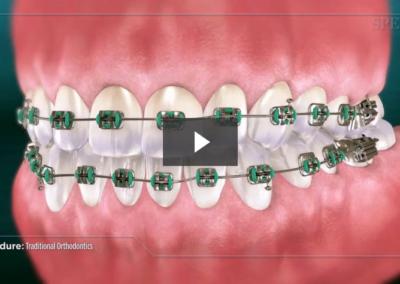 Traditional Orthodontics