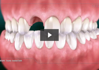 Trauma- Chipped Tooth