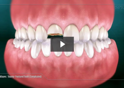Trauma- Fractured Tooth (Complicated)