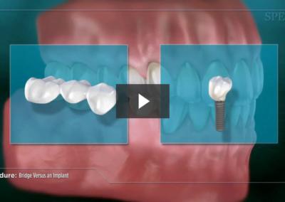 Bridge Versus an Implant