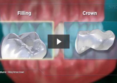 Filling Versus Crown (Impression)