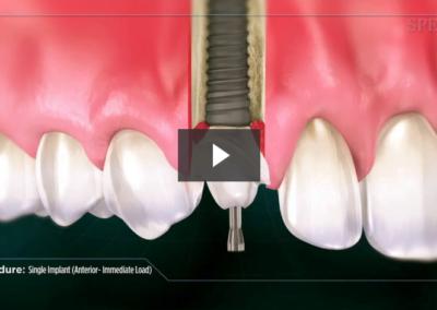 Single Implant (Anterior- Immediate Load)