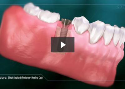 Single Implant (Posterior- Healing Cap)