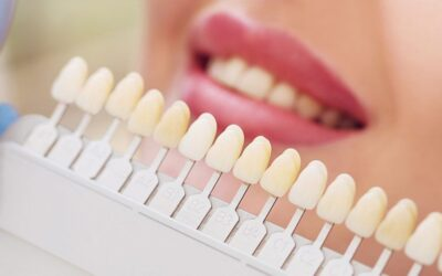 How To Care For Your Veneers To Keep Them Gleaming